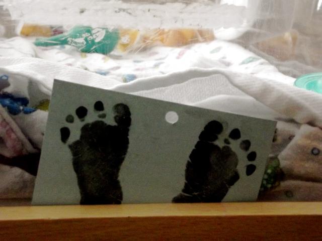 Gunner's Toes